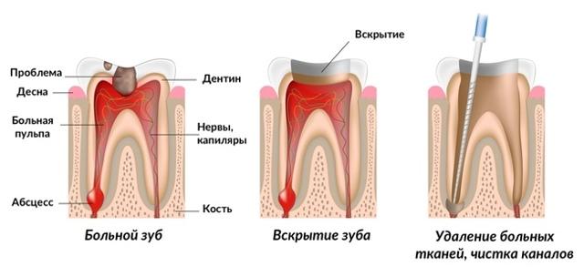Пломбирование зубных каналов: особенности процедуры, возможные осложнения, методы снятия боли
