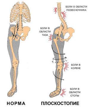 Плоскостопие: степени, лечение и профилактика