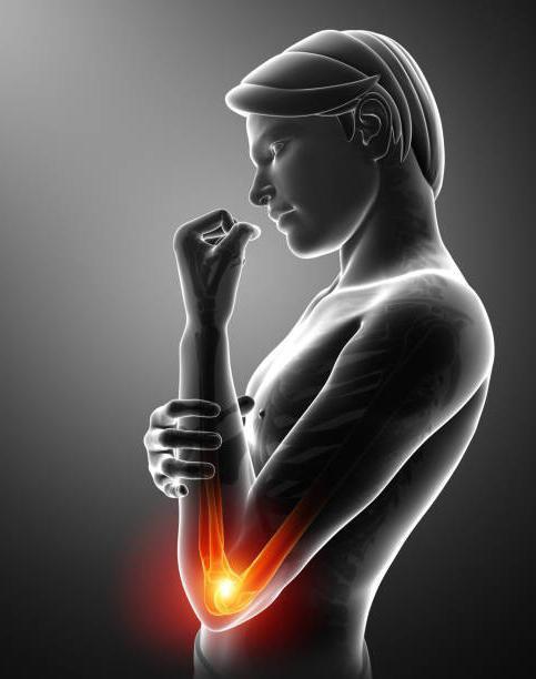 Почему болят локти: причины дискомфорта, методы обследования и лечения, профилактические мероприятия