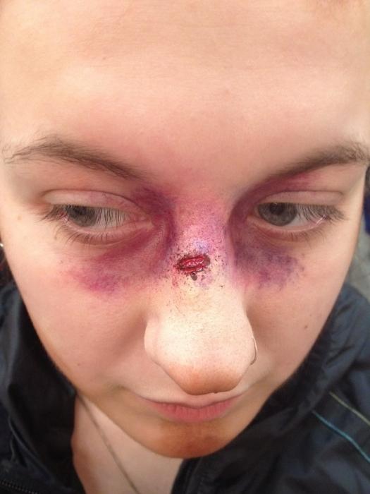 Почему краснеет и опухает нос, может ли это быть следствием перелома