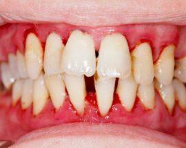 Почему появляется привкус крови во рту: причины, лечение, профилактика