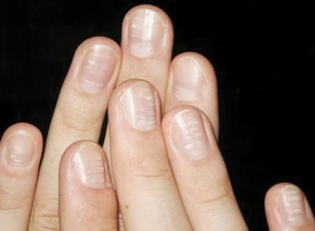 Почему слоятся ногти на руках и ногах: причины ломкости