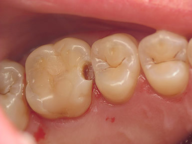 Почему выпадают пломбы из зубов, что делать, если плохо поставили пломбу
