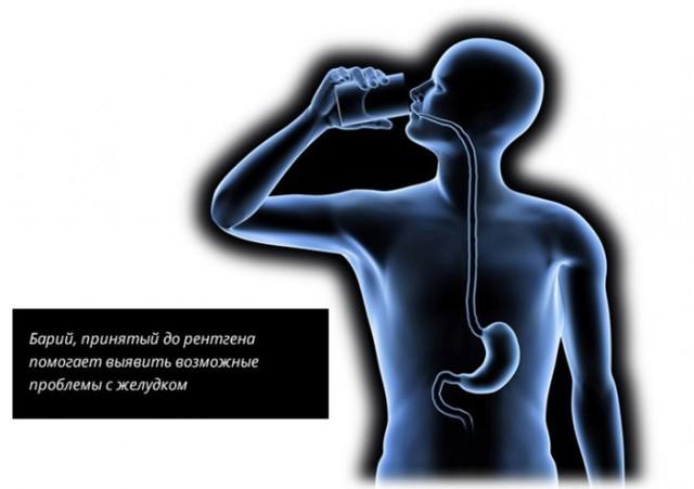 Подготовка к ре рентгену желудка с барием и контрастом: что показывает процедура и ФГДС