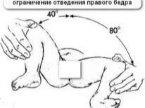 Подготовка к УЗИ тазобедренных суставов у детей, новорожденных, грудничков