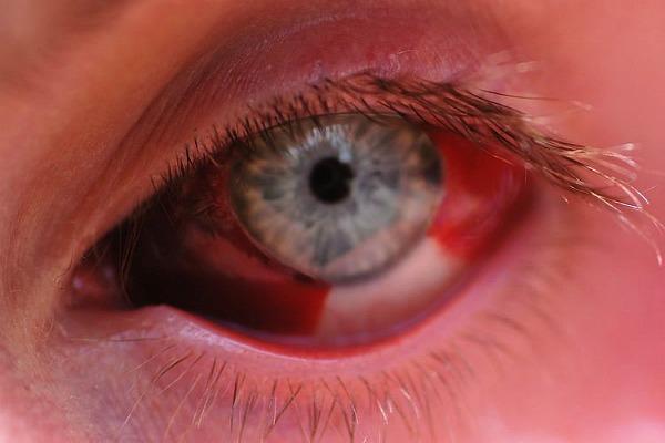 Покраснели белки глаз у ребенка, у взрослого: причины, что делать в домашних условиях