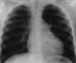 Пороки сердца – что это такое, классификация, причины возникновения, механизм нарушения кровообращения