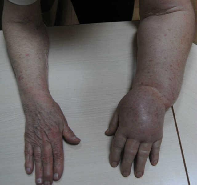 Постмастэктомический синдром: причины проявления, симптомы и профилактика