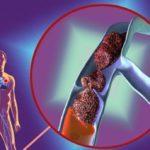 Посттромбофлебитическая болезнь вен нижних конечностей: причины проявления, первые симптомы и профилактика