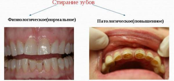 Повышенная стираемость зубов: провоцирующие факторы, характерные проявления, лечебные и профилактические мероприятия