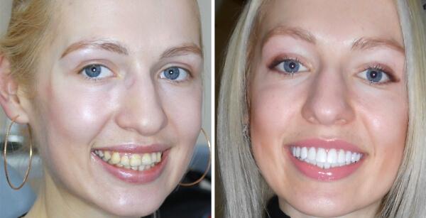 Преимущества и недостатки виниров на зубы: фотографии до и после процедуры