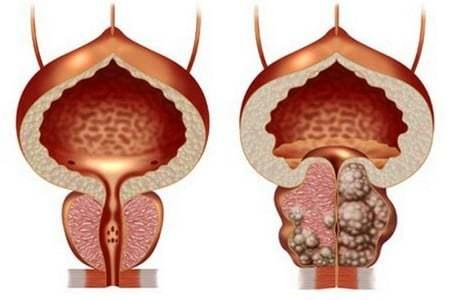 Препараты и операции при раннем семяизвержении