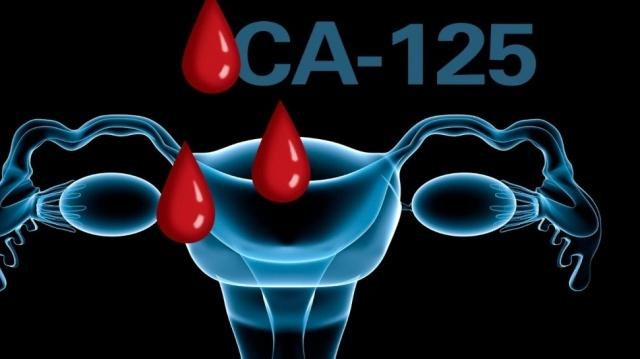 Показатели СА 125 при эндометриозе: превышение, норма