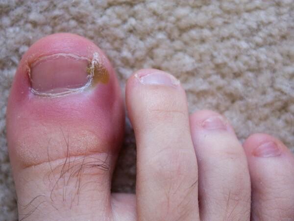 При ногтевой панариции можно пользоваться ихтиоловой мазью: причины воспаления и методы лечения