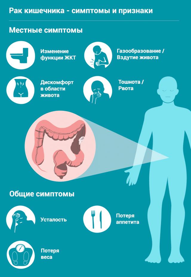 Причины и признаки возникновения рака кишечника, обзор методов борьбы с недугом