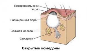 Причины появления прыщей на лице: лечение медицинскими и народными средствами