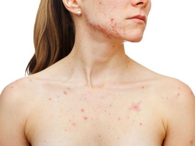 Причины появления сыпи на грудине у женщины в виде прыщиков и потницы