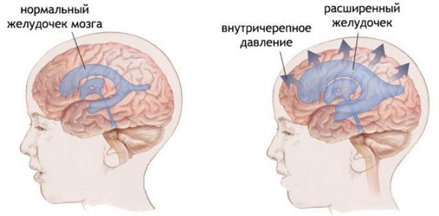 Причины проявления головной боли у детей: что делать, первая помощь