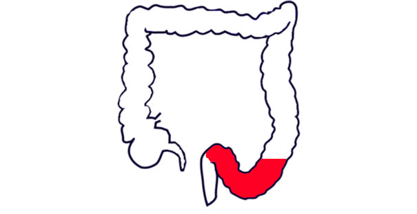 Причины развития и осложнения язвенного сигмоидита – симптомы и опасность болезни