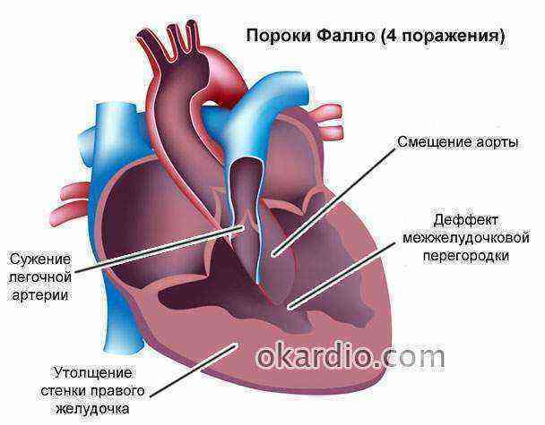 Причины шума сердца у детей в 4 года, 6, 10 лет