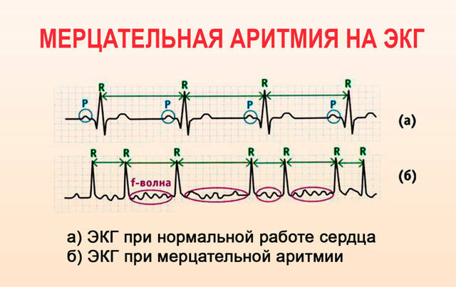 Признаки тахикардии, лечение синусовой и пароксизмальной формы народными средствами