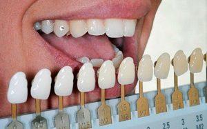 Профессиональное отбеливание зубов системой Beyond Polus: плюсы и минусы, противопоказания