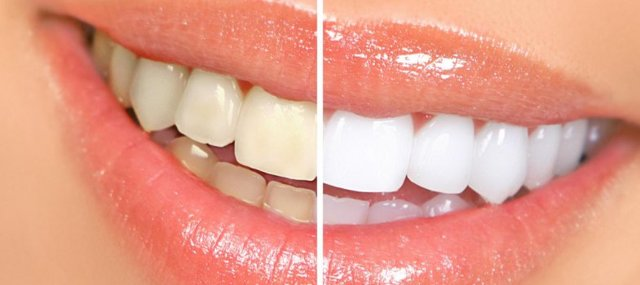 Профессиональное отбеливание зубов: виды, показания, особенности проведения