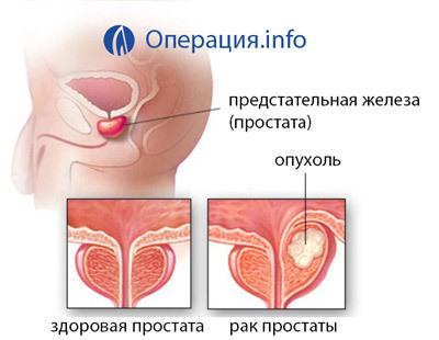 Простатэктомия: что такое система лечения да Винчи, возможные последствия