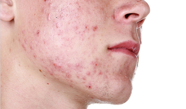 Прыщи и раздражение после бритья: советы, как избавиться от прыщей