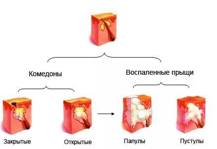 Прыщи на мошонке: причины появления и методы лечения сыпи на интимном органе