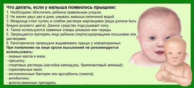 Прыщи у грудничков на лице: причины сыпи у новорожденных, лечение высыпаний у грудничков