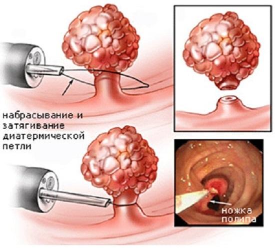 Псевдополипоз ободочной кишки: причины появления, диагностика и лечение