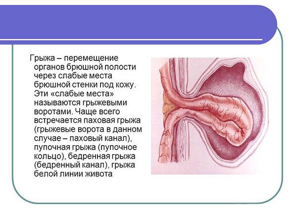 Пупочная грыжа у взрослых: основные причины возникновения патологии и современные методы терапии