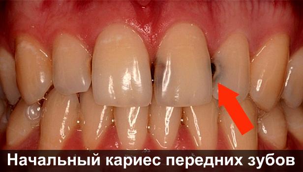 Пятна на зубах — белые, желтые, коричневые, черные: причины появления и эффективные методы лечения