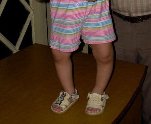 Рахит у детей: симптомы, лечение и профилактика болезни