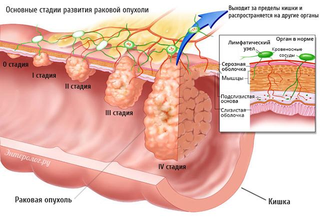 Рак кишечника: стадии, симптомы, течение заболевания, прогноз