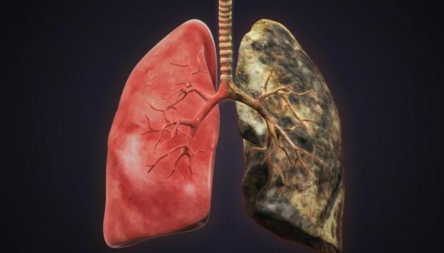 Рак легких: процент выживаемости, срок жизни при разных стадиях, диагностика