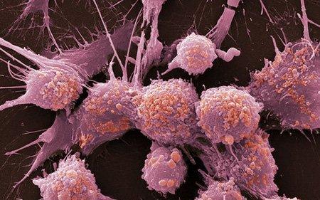 Рак мочевого пузыря: стадии развития, характерные симптомы, методы обследования и лечения