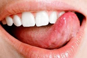 Рак языка: стадии развития, характерные признаки, особенности лечения и меры профилактики