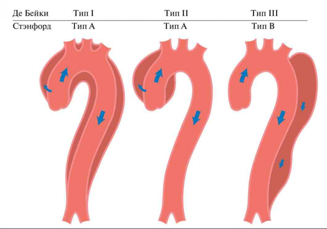 Расслоение аорты: первая помощь, симптомы, причины, методы диагностики и лечения