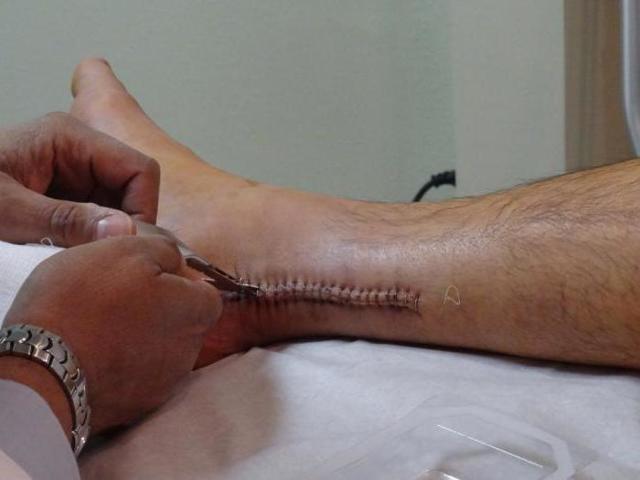 Разрыв ахиллова сухожилия: симптомы травмы, диагностический тест, методы терапии и сроки восстановления