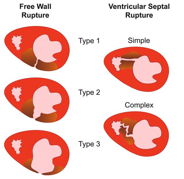 Разрыв сердца: причины возникновения патологии, клиническая картина, диагностика и принципы лечения