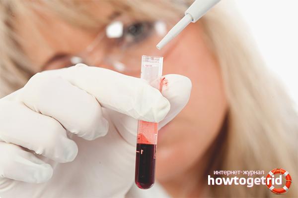 Разжижение крови –показания к проведению и препараты, использование народных средств или аспирина