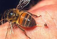 Ребенка покусали жалящие насекомые: осы, пчелы, шмели, шершни – первая помощь