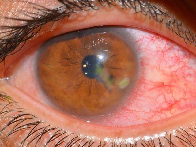 Ребенок ударился глазом: как снять боль и отечность, первые шаги при травме