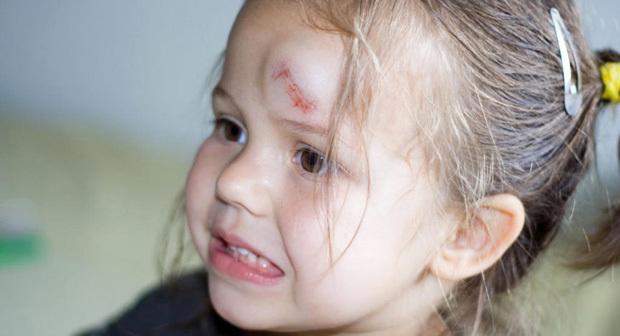 Ребенок упал и ушибся головой при падении с велосипеда, горки или лестницы – первая помощь