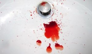 Ректальное кровотечение (из заднего прохода): причины и способы устранения проблемы