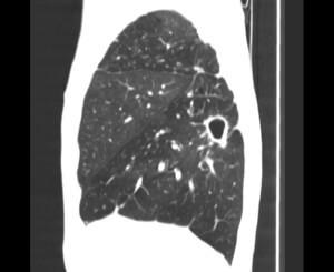 Рентген и компьютерная томография легких как методы диагностики туберкулеза и других патологий