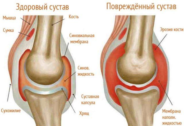 Ревматоидный, подагрический и инфекционный артрит суставов – симптомы и лечениезаболевания