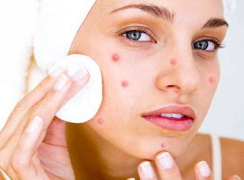 С чем связано появление сыпи на лице?